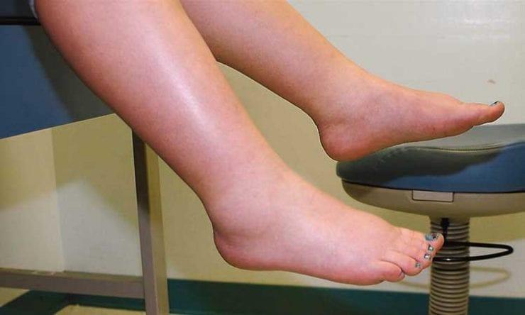 rétention d'eau jambes
