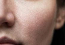comment resserer les pores du visage dialtés