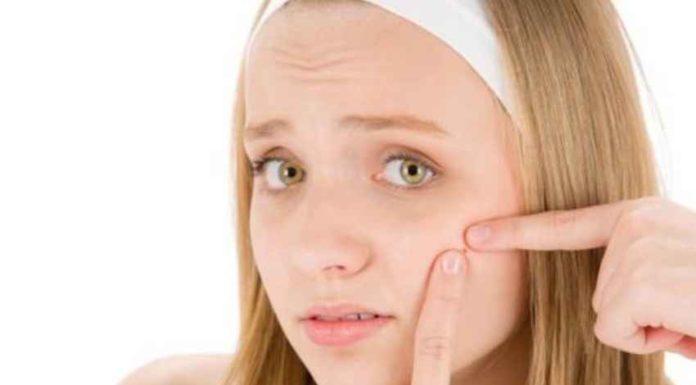 soigner l'acné naturellement